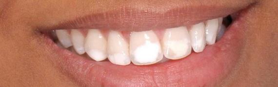 О чем говорит белесое пятно на зубной эмали