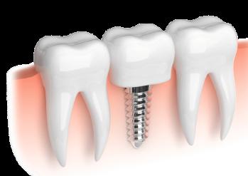 имплантация зубов на Войковской