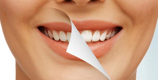 отбеливание зубов на Войковской