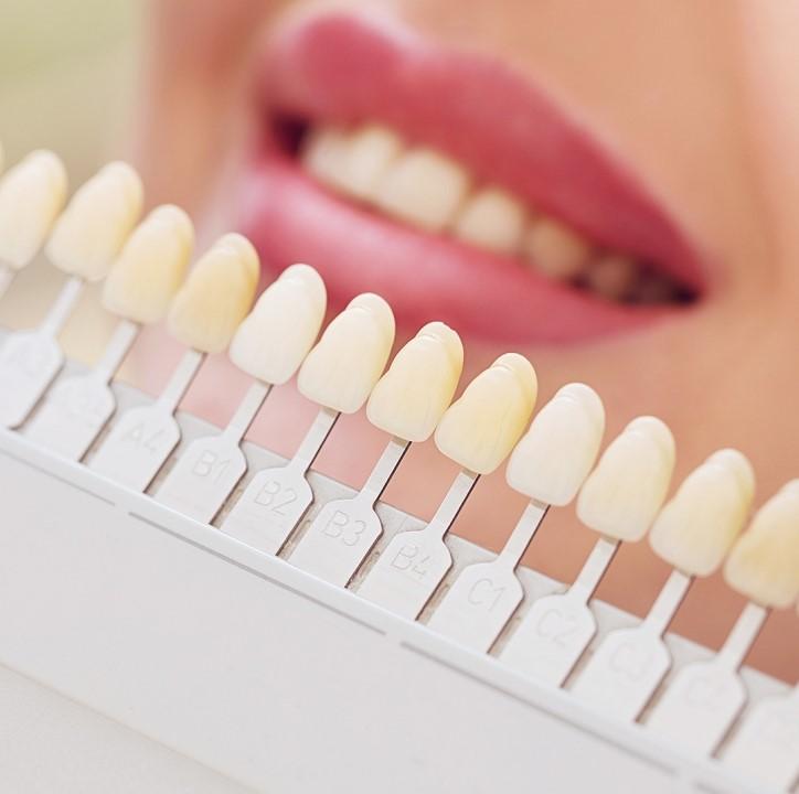 цвет зубной эмали