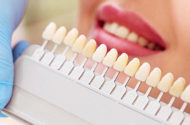 О чем говорит цвет зубной эмали
