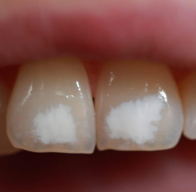 белесый налет на зубной эмали