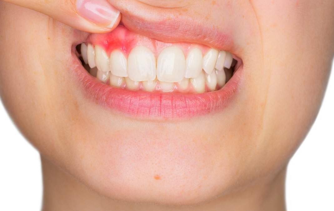 от здоровья десен зависит здоровье зубов